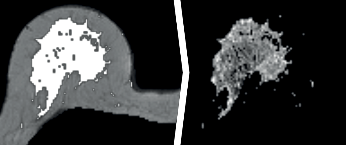 Association between Parenchymal Enhancement of the Contralateral Breast in Dynamic Contrast-enhanced MR Imaging and Outcome of Patients with Unilateral Invasive Breast Cancer